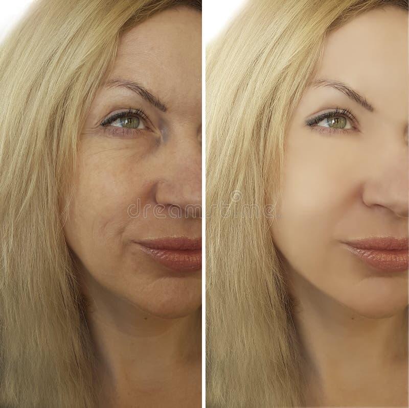 Arrugas de la cara antes y después foto de archivo libre de regalías