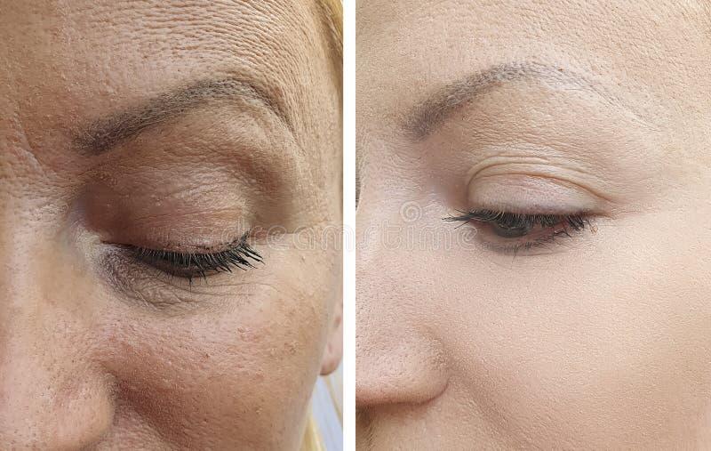 Arrugas de la cara de la mujer antes y despu?s de la correcci?n fotos de archivo libres de regalías