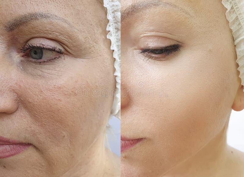 Arrugas de la cara de la mujer después de la tensión de la corrección del rejuvenecimiento de la diferencia del cosmetólogo del t imagen de archivo