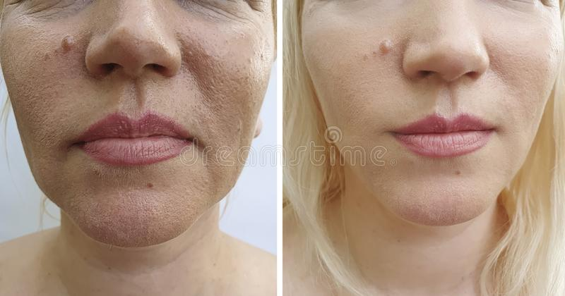 Arrugas de la cara de la mujer después de la tensión del rejuvenecimiento de la diferencia del cosmetólogo del tratamiento del ef imágenes de archivo libres de regalías