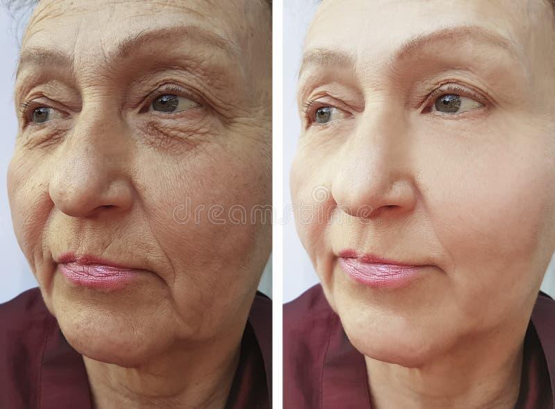 Arrugas de la cara de la mujer mayor antes y después de procedimientos imagen de archivo libre de regalías