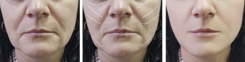 Arrugas de la mujer antes y después de tratamientos del rejuvenecimiento del cirujano del tratamiento de la cosmetología fotografía de archivo
