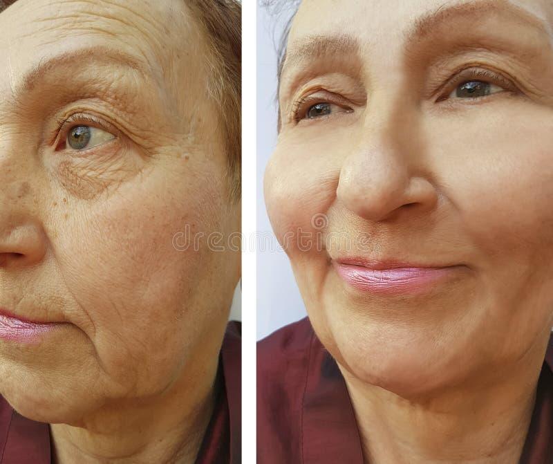 Arrugas de la mujer de la cara antes y después de la terapia de elevación de la cosmetología fotos de archivo