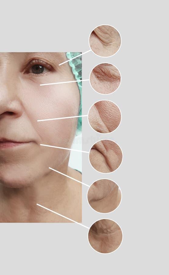 Arrugas de la mujer mayor antes después del collage paciente de los procedimientos de los regenerationresults de la cosmetología  fotos de archivo