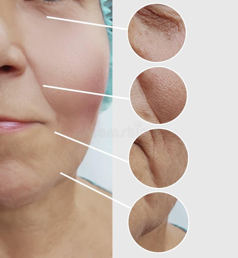 Arrugas de la mujer mayor antes después del collage paciente de los procedimientos de los regenerationresults de la cosmetología  imagen de archivo