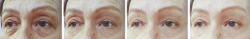 Arrugas de la mujer mayor antes y después de la corrección del retiro de la corrección imagenes de archivo