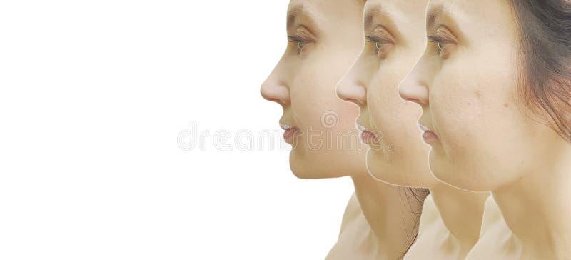 Arrugas de la mujer mayor antes y después de la corrección del retiro de la corrección de problema fotografía de archivo