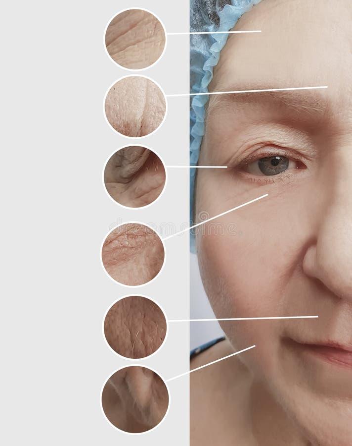 Arrugas de la mujer mayor antes y después del collage de los procedimientos imagen de archivo