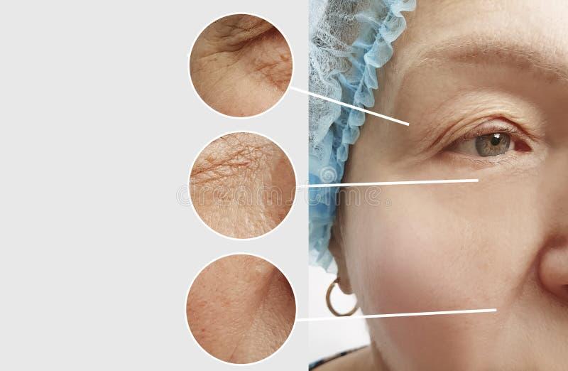 Arrugas de la mujer mayor antes y después del collage paciente de los procedimientos imágenes de archivo libres de regalías
