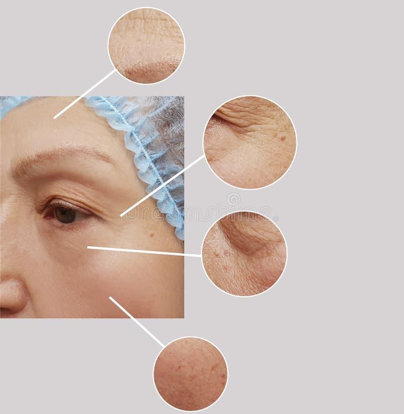 Arrugas de la mujer mayor antes y después del collage paciente de los procedimientos de los regenerationresults de la cosmetologí imagen de archivo libre de regalías