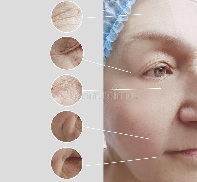 Arrugas de la mujer mayor antes y después del collage paciente de los procedimientos de los regenerationresults de la cosmetologí imagen de archivo
