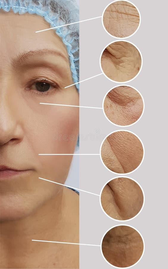 Arrugas de la mujer mayor antes y después del collage paciente de los procedimientos de los regenerationresults de la cosmetologí imagenes de archivo