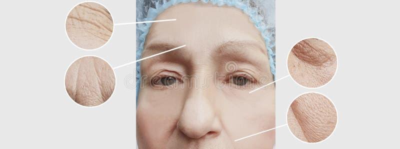 Arrugas de la mujer mayor antes y después del collage paciente de los procedimientos de los regenerationresults fotografía de archivo