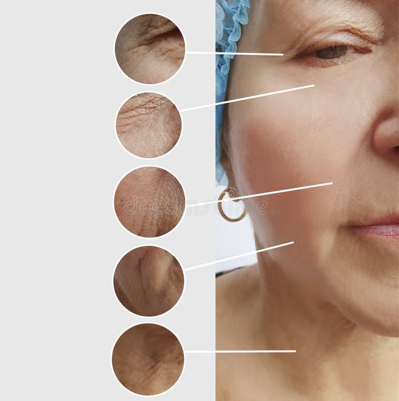 Arrugas de la mujer mayor antes y después del collage paciente de los procedimientos de los resultados fotografía de archivo libre de regalías