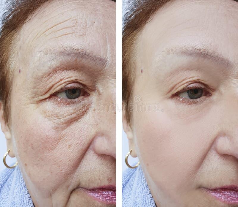 Arrugas de la mujer mayor antes y después de tratamientos de la cosmetología de la corrección fotos de archivo