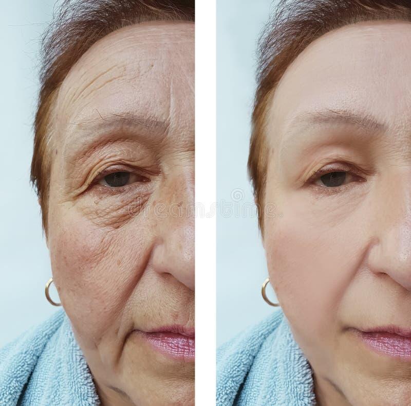 Arrugas de la mujer mayor antes y después de tratamientos de la cosmetología de la corrección de la medicina imágenes de archivo libres de regalías