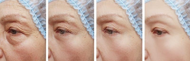 Arrugas de la mujer mayor antes y después de tratamientos de la regeneración de la corrección del collage foto de archivo