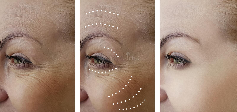 Arrugas de la mujer que levantan antes después de tratamientos de la cosmetología de la regeneración de la corrección de la difer imagenes de archivo