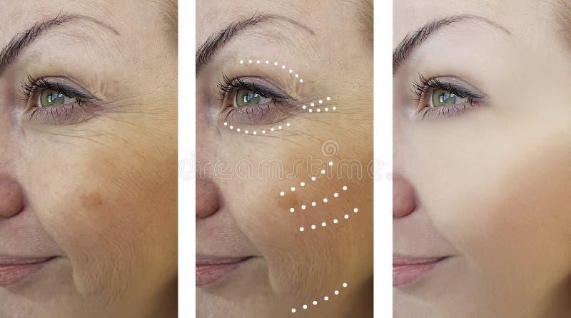 Arrugas de la mujer que levantan antes y después de tratamientos de la cosmetología fotos de archivo