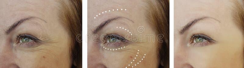 Arrugas de la mujer que levantan antes y después de tratamientos de la cosmetología de la regeneración foto de archivo libre de regalías
