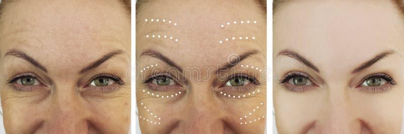 Arrugas de la mujer que levantan antes y después de tratamientos de la cosmetología de la regeneración de la corrección foto de archivo