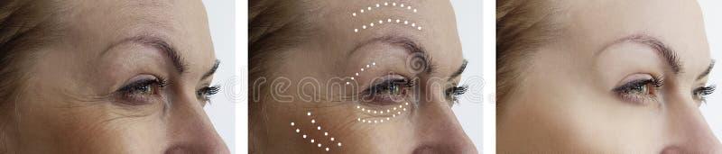 Arrugas de la mujer que levantan antes y después de tratamientos de la cosmetología de la regeneración de la corrección de la dif imagenes de archivo