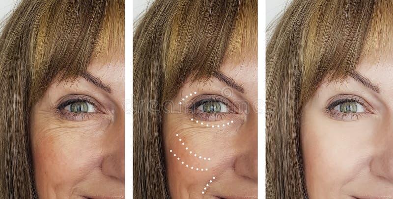 Arrugas de la mujer que levantan la medicina antes después de tratamientos de la cosmetología de la regeneración de la corrección fotos de archivo libres de regalías