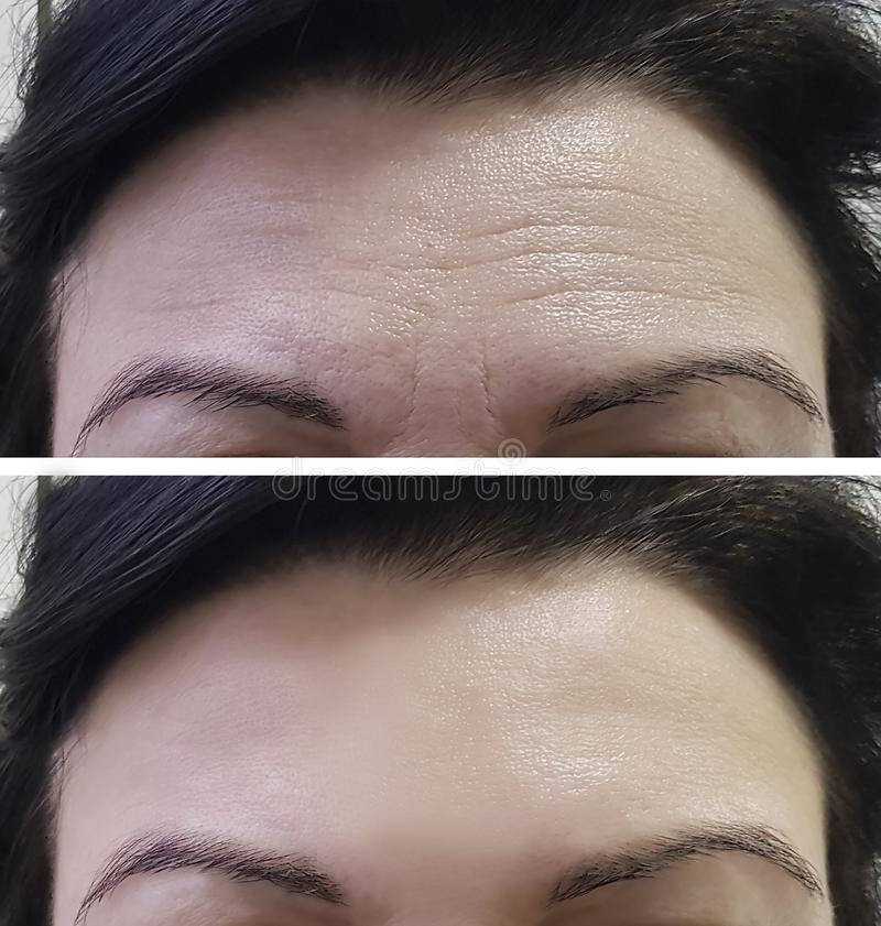 Arrugas de las mujeres de la frente antes y después imagenes de archivo