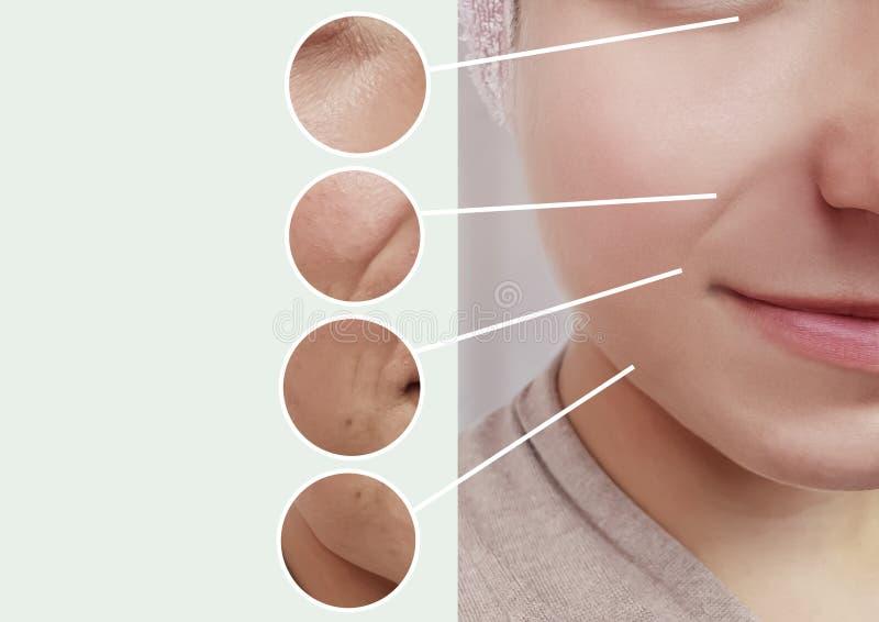 Arrugas de los ojos de la mujer que hinchan contraste del concepto de la terapia de la dermatología antes y después del collage d fotografía de archivo libre de regalías
