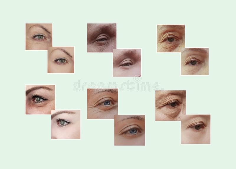 Arrugas del ojo de la mujer antes y después del collage de los procedimientos fotos de archivo