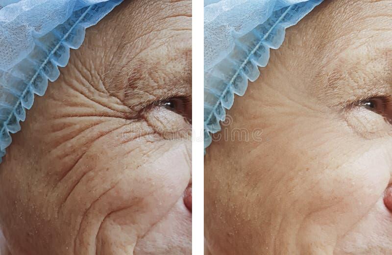 arrugas del viejo hombre antes despu?s del tratamiento imagen de archivo
