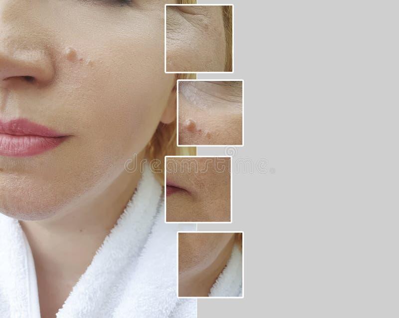 Arrugas maduras de la regeneración del collage del resultado del retiro de la mujer de la cara que levantan antes y después de pr fotos de archivo libres de regalías