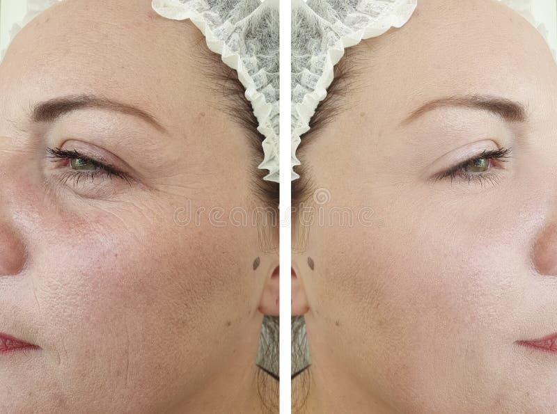 Arrugas maduras del resultado del retiro de la mujer de la cara que levantan antes y después de procedimientos fotografía de archivo libre de regalías