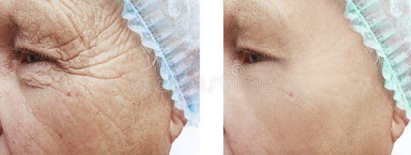 Arrugas masculinas antes y después de tratamientos foto de archivo