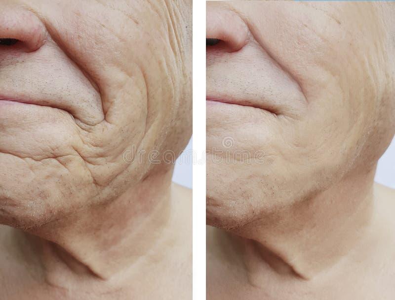 Arrugas masculinas antes y después del efecto de los tratamientos foto de archivo libre de regalías