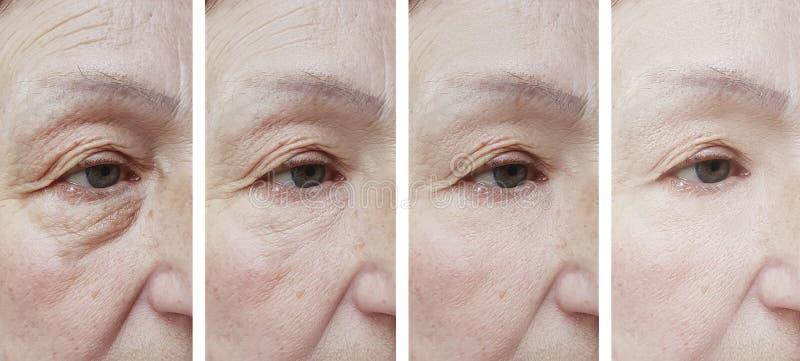 Arrugas mayores de la cara de la mujer antes del procedimiento después del tratamiento imagen de archivo