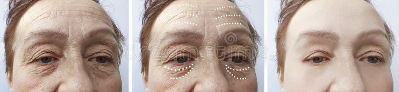 Arrugas mayores de la mujer antes y después de la diferencia de la elevación fotografía de archivo libre de regalías