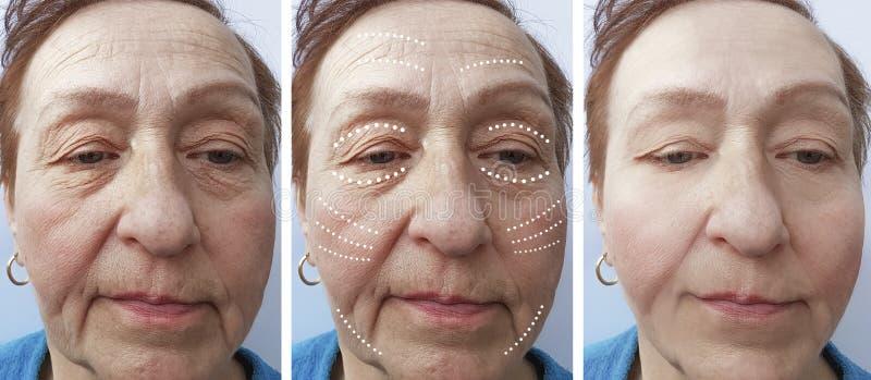 Arrugas mayores de la mujer antes y después de la elevación fotos de archivo libres de regalías