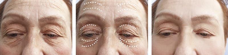 Arrugas mayores de la mujer antes y después de procedimientos imágenes de archivo libres de regalías