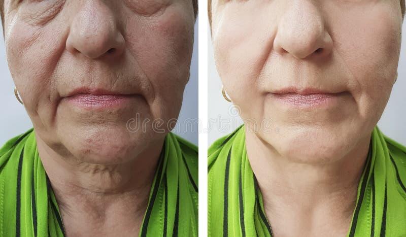Arrugas mayores de la mujer antes y después de resultados de tratamientos de los procedimientos del rejuvenecimiento foto de archivo
