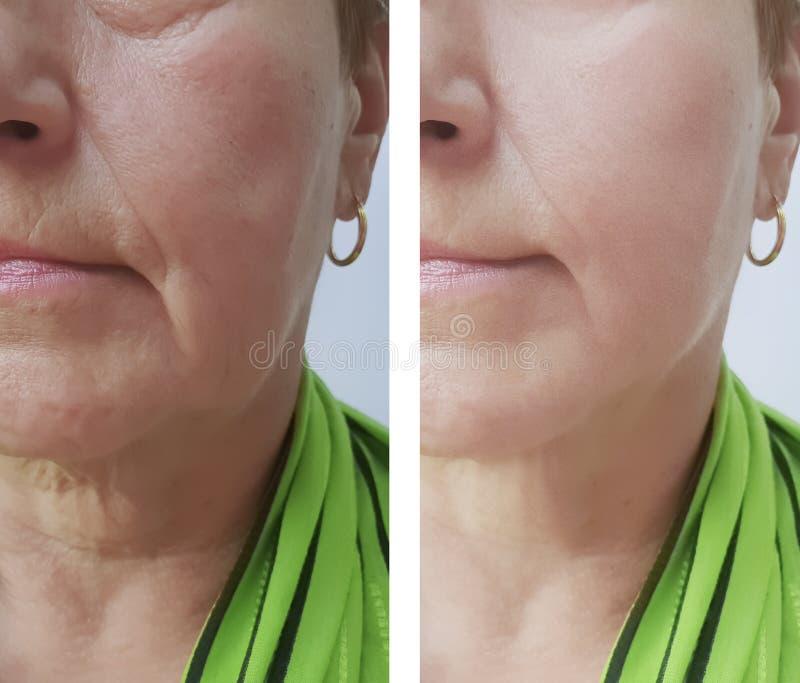 Arrugas mayores de la mujer antes y después de resultados de tratamientos de los procedimientos imagen de archivo libre de regalías