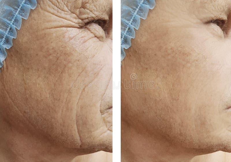 Arrugas mayores masculinas antes y después del efecto de los tratamientos foto de archivo libre de regalías
