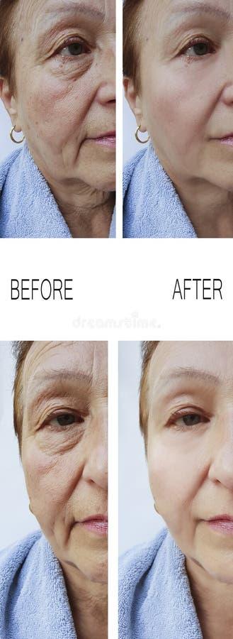 Arrugas viejas de la mujer antes y después del rejuvenecimiento de elevación de los tratamientos de la terapia imagen de archivo libre de regalías