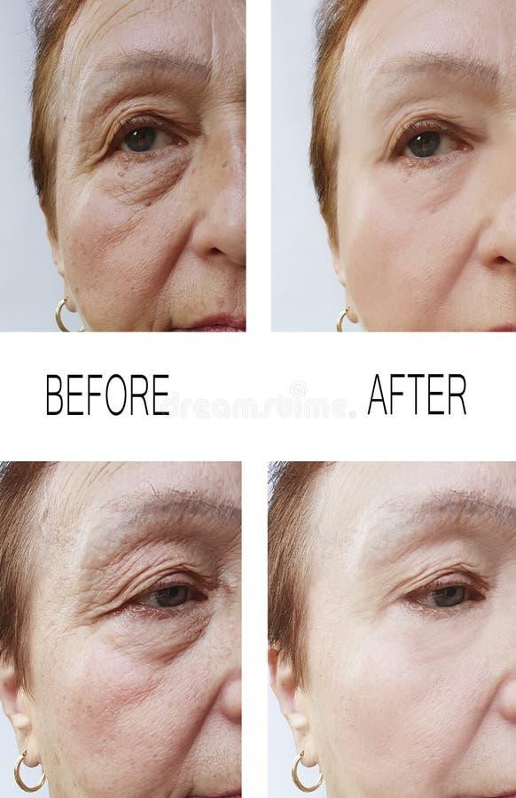 Arrugas viejas de la mujer antes y después del rejuvenecimiento de los tratamientos de la terapia imagen de archivo libre de regalías