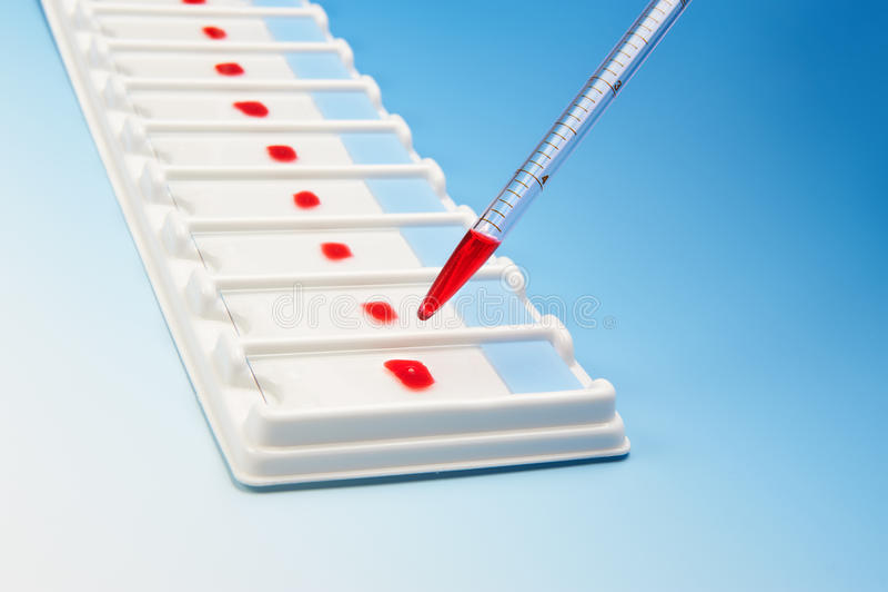 Arsenal de las muestras de sangre para la microscopia y la pipeta fotografía de archivo libre de regalías