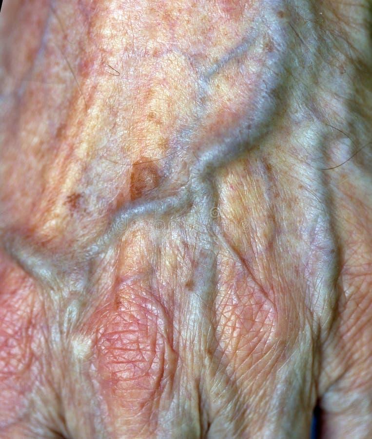 Artère photos stock