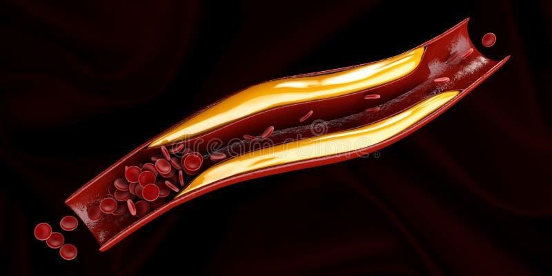 Artère avec l'habillage de cholestérol réaliste illustration libre de droits