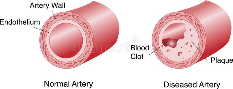Artère avec la plaque et le caillot sanguin illustration libre de droits