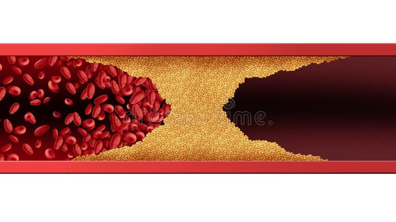 Artéria humana obstruída ilustração do vetor
