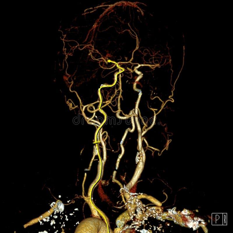 Artérias do cérebro fotografia de stock